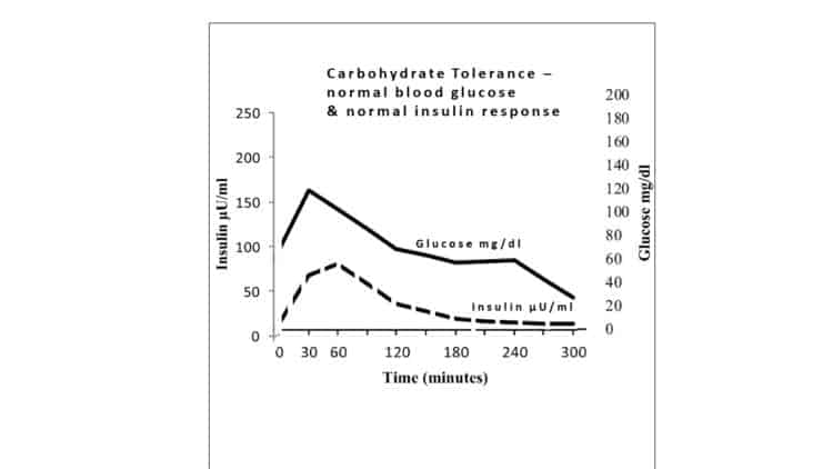 ... Identifying hyperinsulinaemia in the absence of impaired glucose  tolerance: An examination of the Kraft database. Diabetes Res Clin Pract,  2016. 118: p.